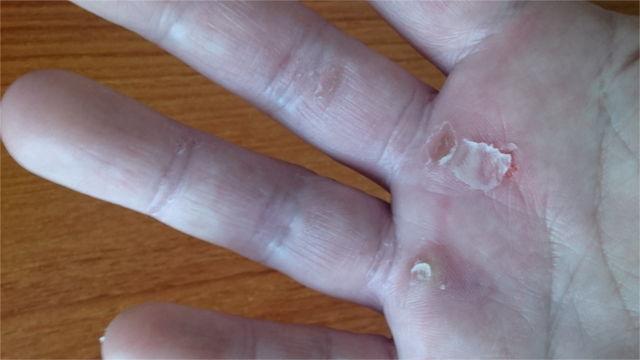 懸垂により剥けた手の皮