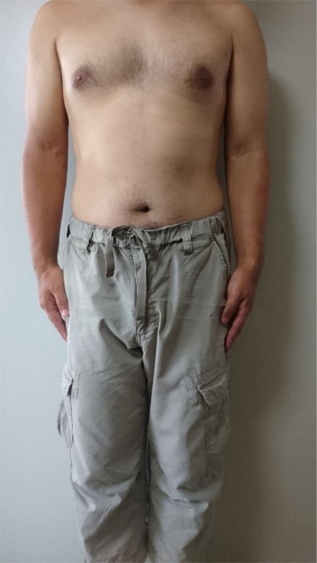 胸毛と腹毛を未脱毛の状態1