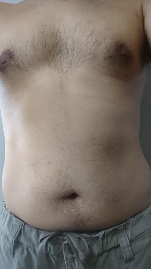胸毛と腹毛を未脱毛の状態2