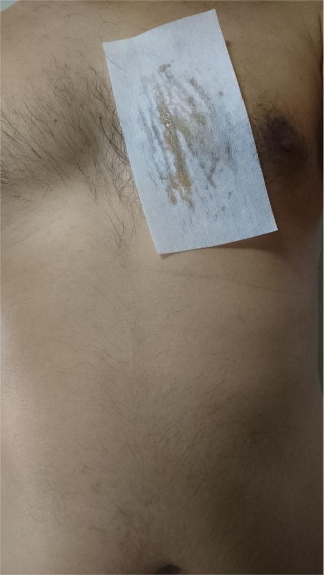 胸毛にワックスを塗ってシートを貼り付ける