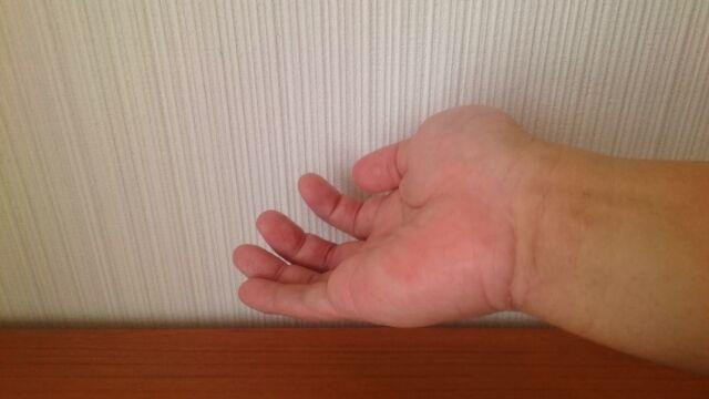 脱毛後の手首1