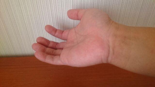 脱毛後の手首2