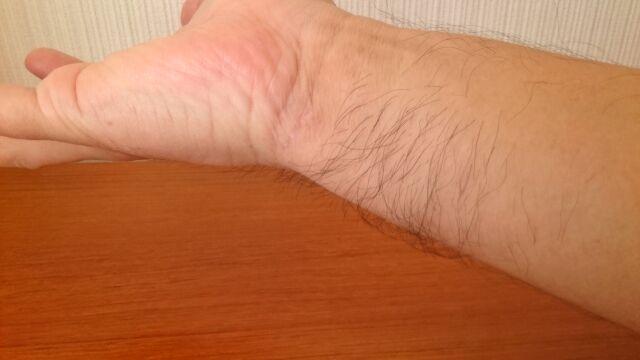 手首の内側の毛