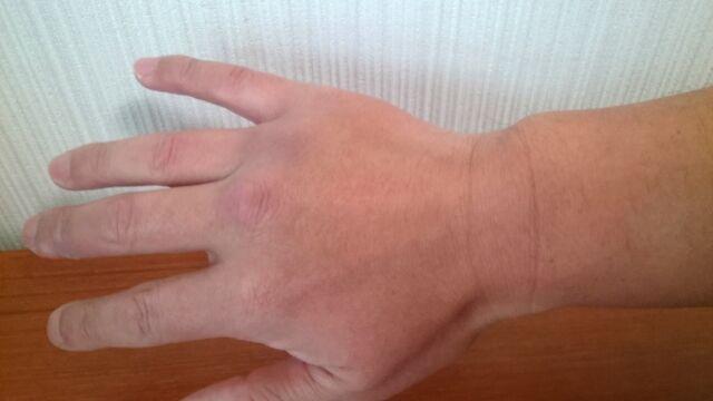 脱毛後の手の甲