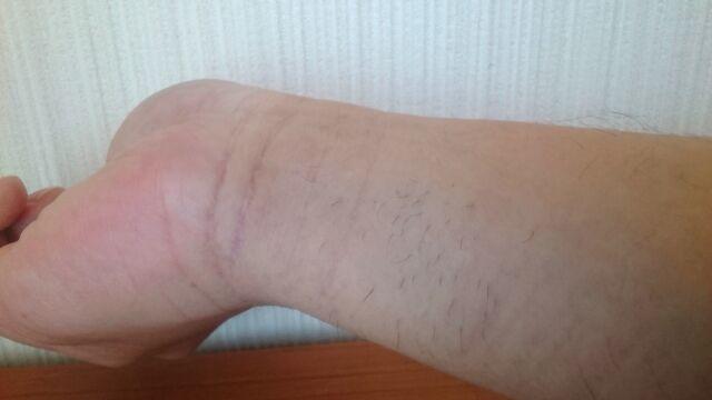 脱毛後1か月の手首