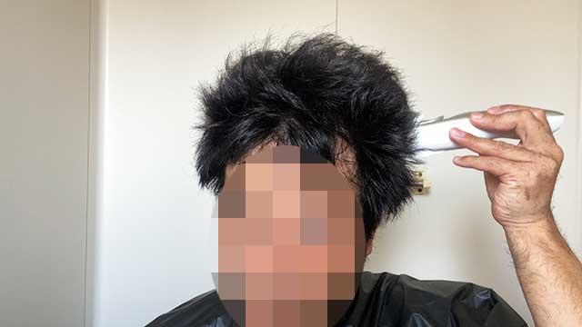 ナチュラルアタッチメントで頭頂部の毛量を調整